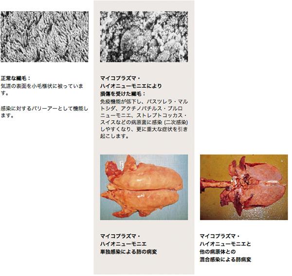 細菌 性 肺炎 と は